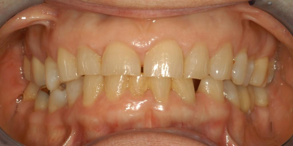 Fixed Prosthodontics Amp Restorative Dentistry Pacific