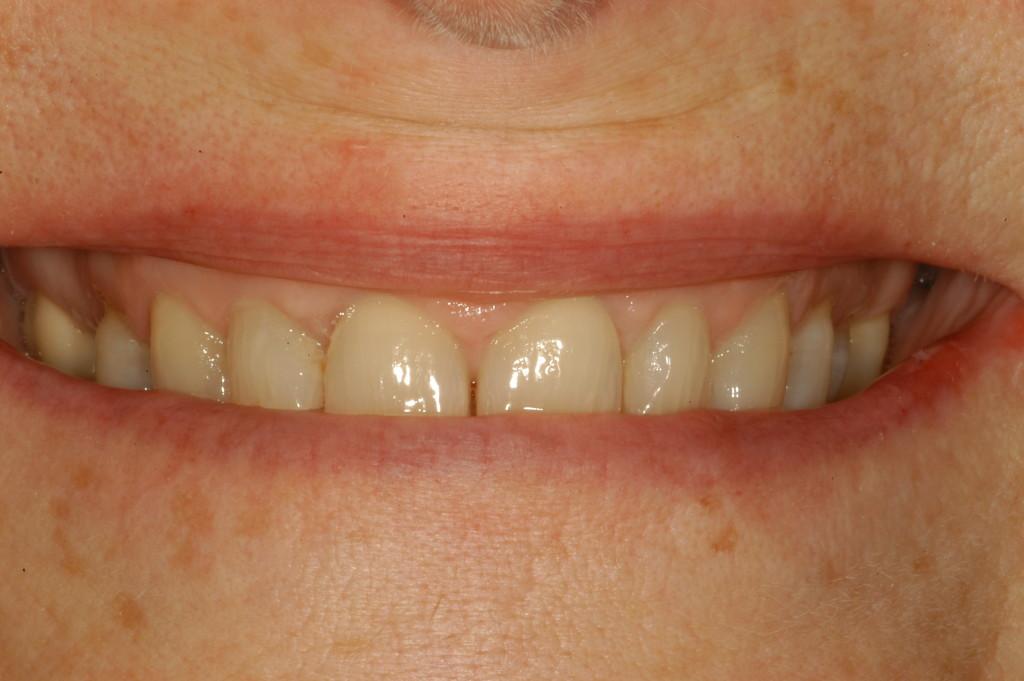 fixed prosthodontics  u0026 restorative dentistry